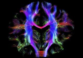 Ejercicio. Entre la emoción y la razón: Pinky y Cerebro